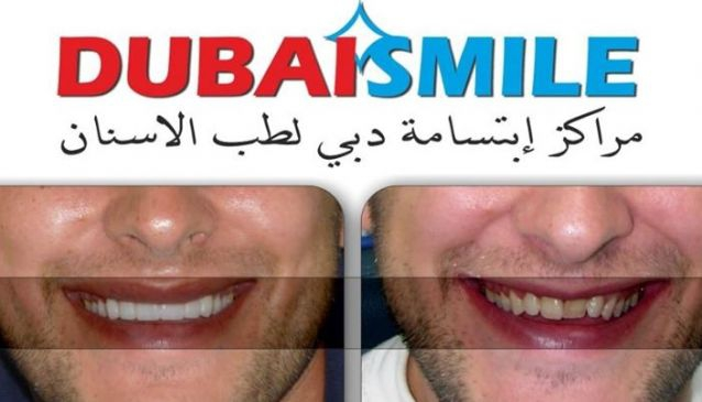 Dubai Smile Dental Center