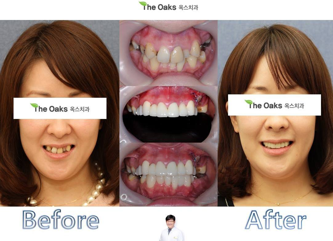 Best English dental clinics Seoul, Korea - Why choose Seoul