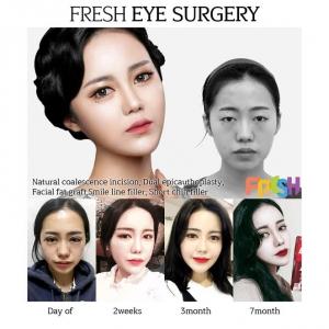 Fresh Plastic Surgery