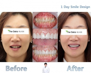 1 day smile design!
