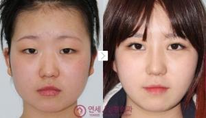 Yonsei J Plastic Surgery